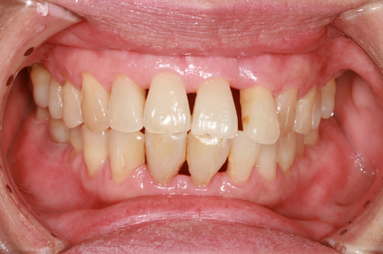 How Can I Prevent Periodontal Diseases Southeast Family