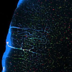 When mice sleep, fluid-filled channels (pale blue) between neurons expand and flush out waste. (Photo credit: Xie et al. 2013, Science)