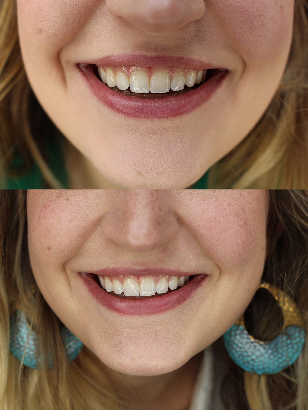 Teeth whitening, at home teeth whitening, whitening, beauty, Southern Style Diaries