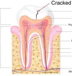 cracked teeth [ 1024 x 782 Pixel ]
