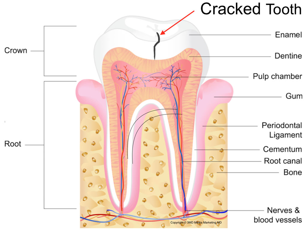 hight resolution of cracked teeth