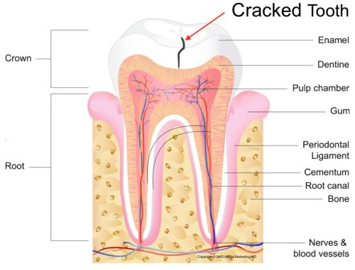 small resolution of cracked teeth