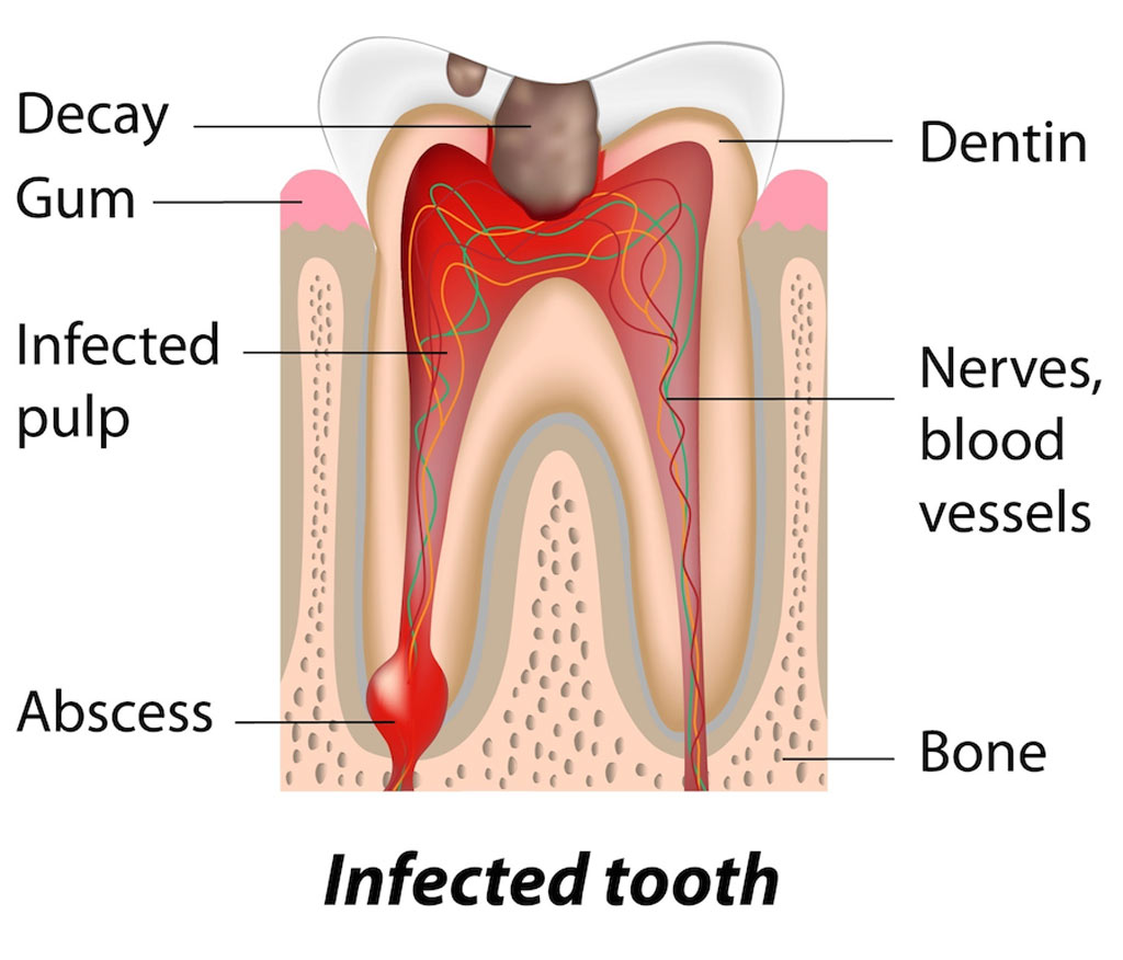 hight resolution of abscessed teeth