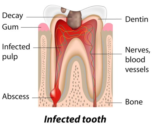 small resolution of abscessed teeth