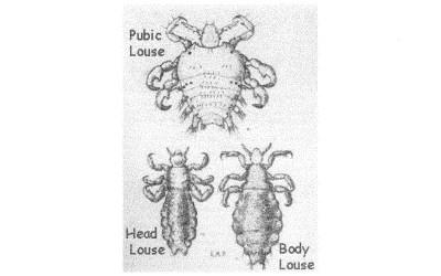 What Kind of Louse Is It?