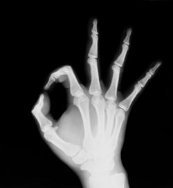 Immagine di una mano ai Raggi X