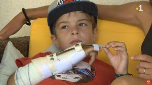 Bambino francese di 9 anni dà da mangiare allo squalo con le mani e viene ferito gravemente al braccio