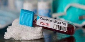 Coronavirus, ultimo bollettino della Regione Calabria. 991 (+16 rispetto a ieri, dato rettificato)