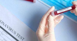 Coronavirus, nuovo bollettino della Regione Calabria. 1.097 casi positivi (+1 rispetto a ieri)