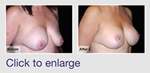 Implant Removal & Breast Lift