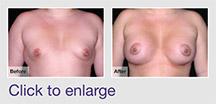 Tuberous Breast Deformity