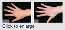 Fat Transfer to Hands