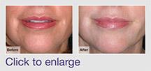 Moderate Depth Skin Resurfacing