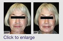 Deep Skin Resurfacing
