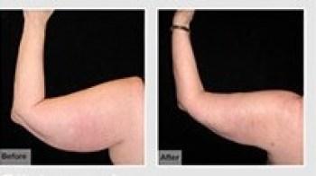 CAST Liposuction