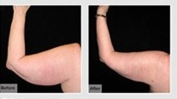 CAST Liposuction