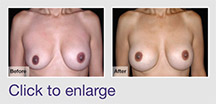 Breast Implant Removal