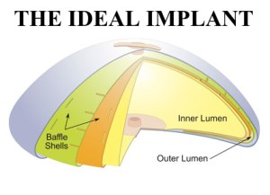 Blog IDEAL IMPLANT