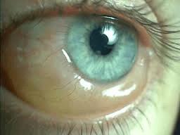 Seattle eyelid surgery