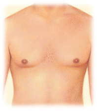 Gynecomastia treatment by Seattle Plastic Surgeon