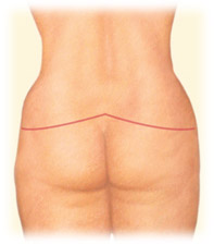 Lower body lift for massive weight loss by Seattle Plastic Surgeon