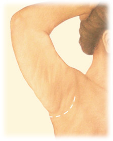Mini Arm Lift Brachioplasty by Seattle Plastic Surgeon