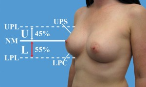 blog ideal breast