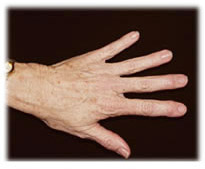 Fat transfer a.k.a. lipostructure for hand rejuvenation by Seattle plastic surgeon