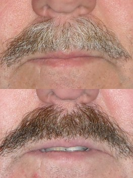 Mustache dye job seen by Seattle Plastic Surgeon