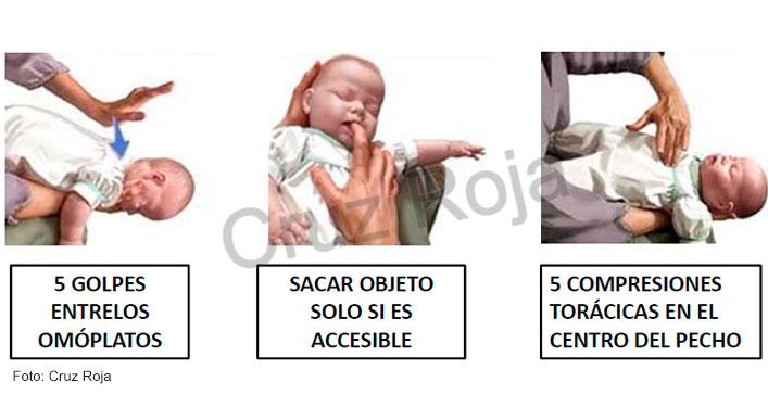 heimlich en bebés