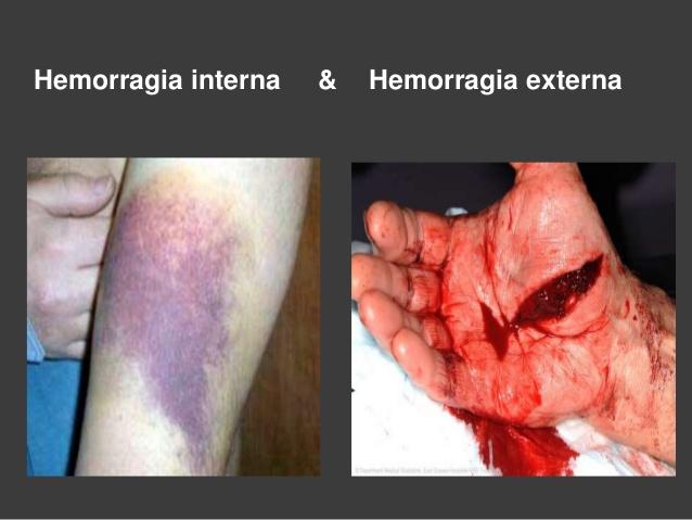 Primeros auxilios: hemorragia externa