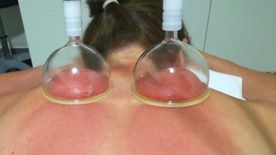 SHA Cupping Treatment with suctions cups