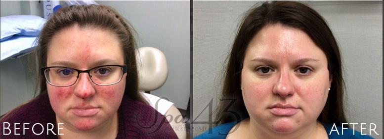 Vascular Facial Laser Treatment Clinton Township MI