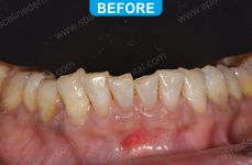 Cosmetic Dentistry - 4-1