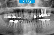 Implants - 5-5