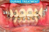 Orthodontics -1-4