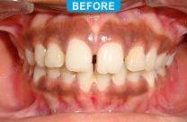 Orthodontics -2-1