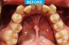 Orthodontics -3-1