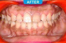 Orthodontics -4-5