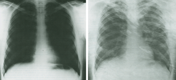 Normal Roentgenogram (left) and one from an Apollo astronaut (right) accidentally exposed to propellants during capsule descent. The second figure suggests fluid infiltrate of the lungs. - Credits: NASA/JSC
