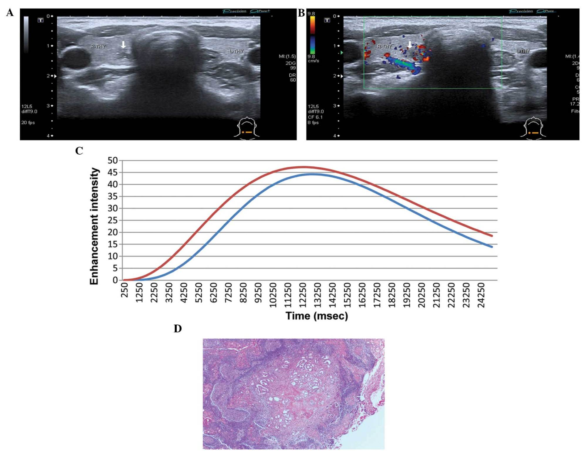 hight resolution of sonograms from 2d ultrasound of papillary thyroid microcarcinoma with a an irregular ill defined nodule with microcalcification inside b mode ultrasound