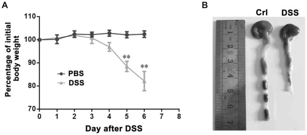 medium resolution of dss induced colitis model a mice were administered 5 dss in the drinking fluid for 6 days and weighed every day b the colon was excised between the