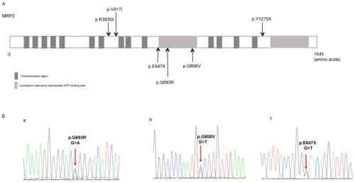 small resolution of figure 1 distribution of the identified abcc2 variants and the representative sequencing of the three novel variants a distribution of the six abcc2