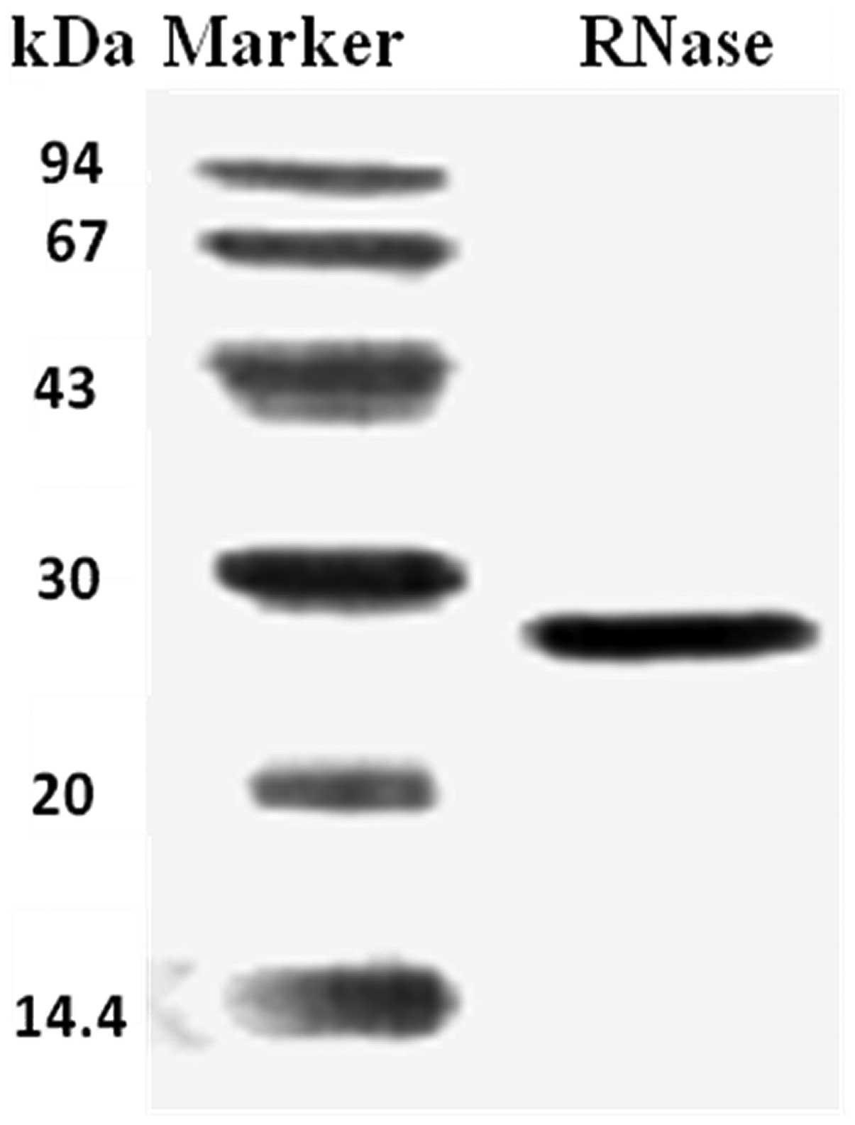 A Novel Ribonuclease With Antiproliferative Activity Toward Leukemia And Lymphoma Cells And Hiv