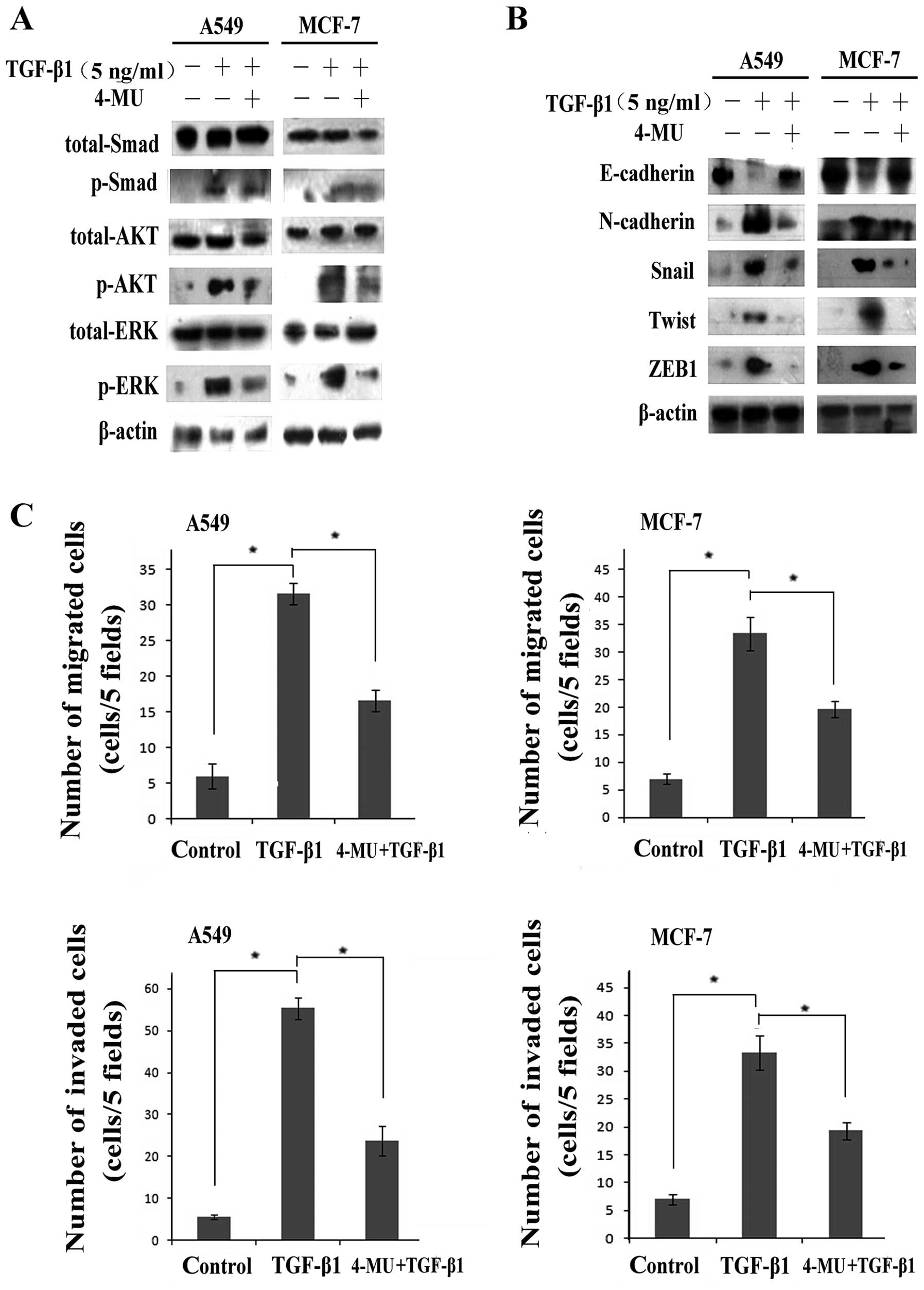 Transforming Growth Factor 1 Induces Emt By The
