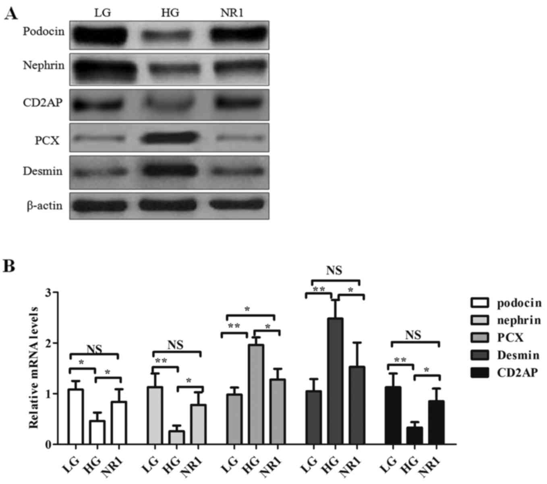 Notoginsenoside R1 Attenuates Glucose Induced Podocyte