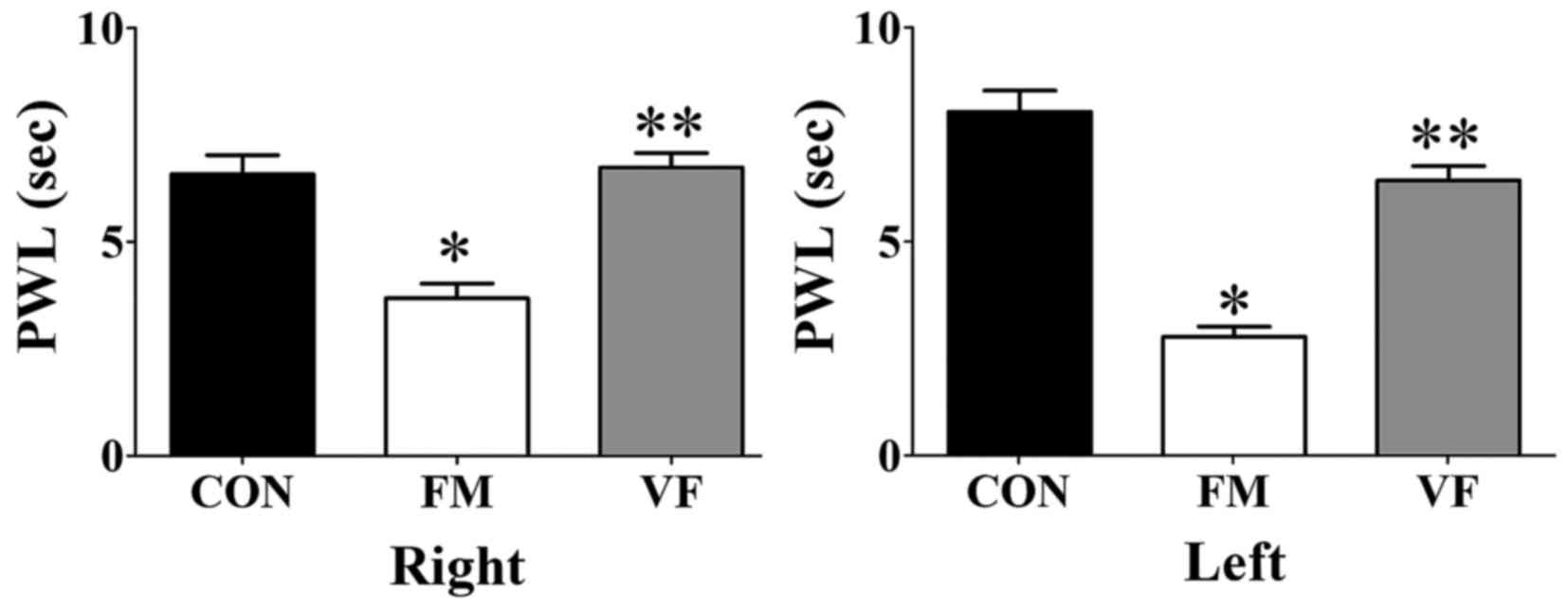 hight resolution of figure 2 differences in reaction time in the plantar test caused by vf administration effects of vf on nociceptive responses in the plantar test