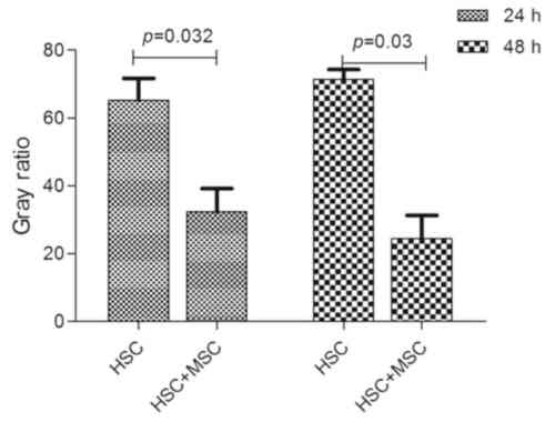 small resolution of decreased level of transforming growth factor 1 tgf 1 caused by human umbilical cord mesenchymal stem cells huc mscs tgf 1 protein in hepatic