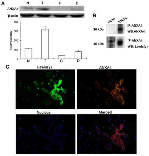small resolution of co expression of anxa4 and lewis y antigen in ovarian cancer cells a western blot analysis detection of anxa4 protein expression in the 4 ovarian cancer