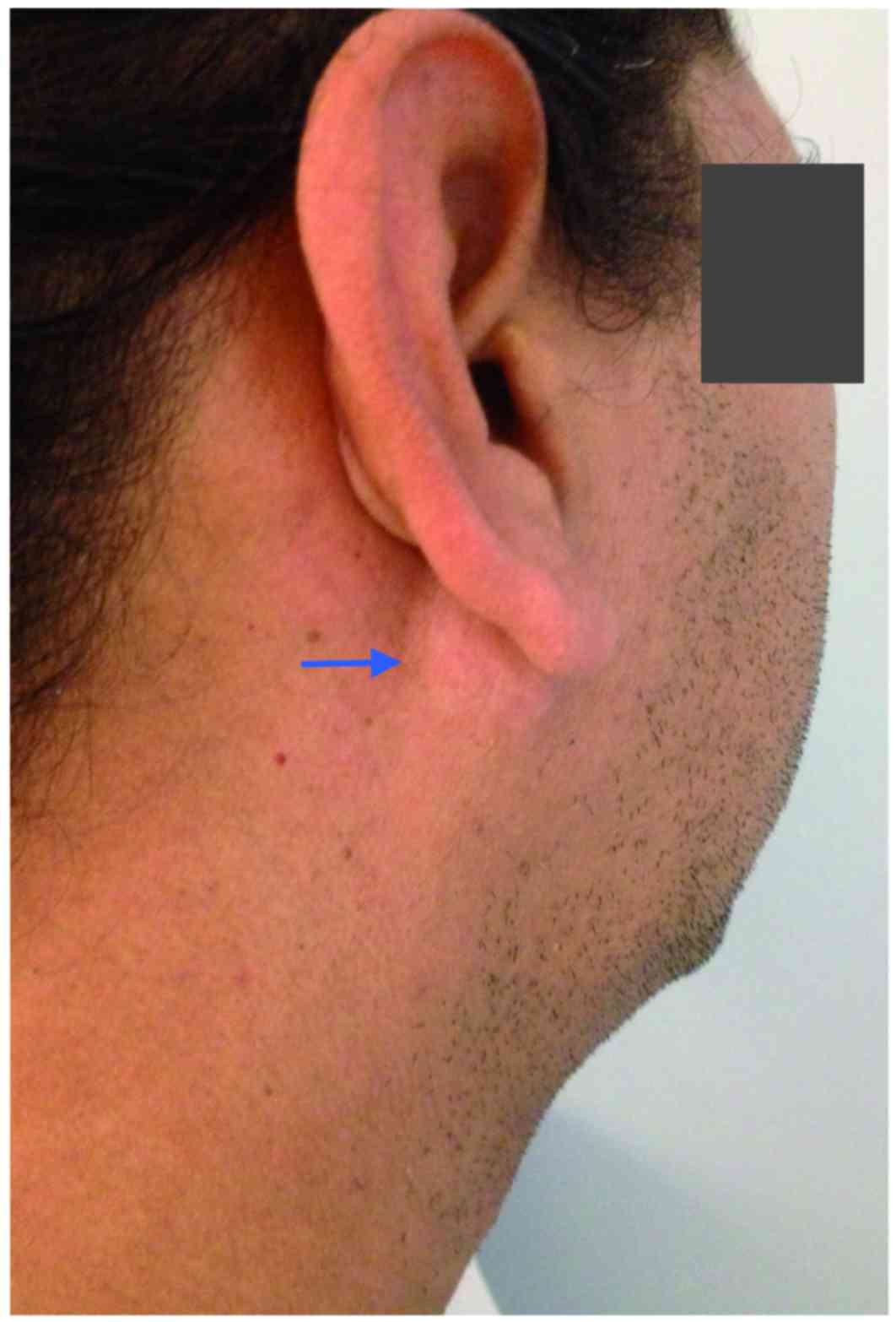 Primary Extraosseous Plasmacytoma Of The Parotid Gland A